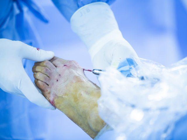 Operacja haluksów – gojenie ran po zabiegu
