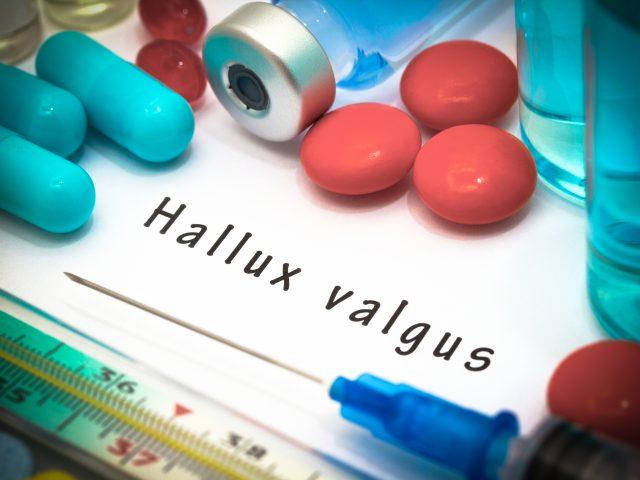 Hallux valgus - operacja na haluksy