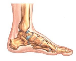 Osteotomia Ludloff'a – wszystko co musisz wiedzieć