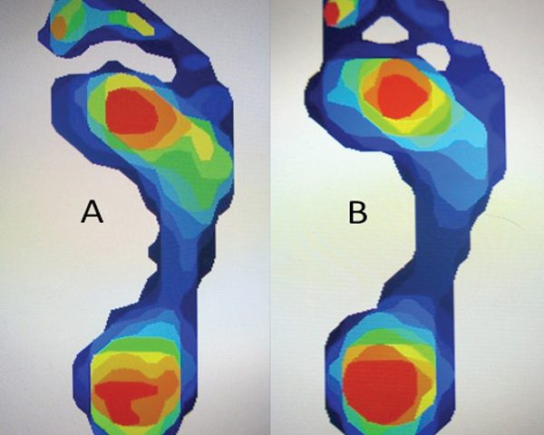 Diagnostyka haluksów – pomiar nacisku podeszwowego