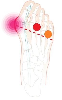 Jak haluks wpływa na obciążenie stopy? Czy od haluksa może boleć kręgosłup?